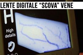 Iniezioni e prelievi facili con la lente digitale che mostra le vene